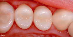 White_Fillings1.jpg